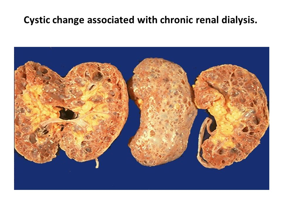 Cystic change associated with chronic renal dialysis.