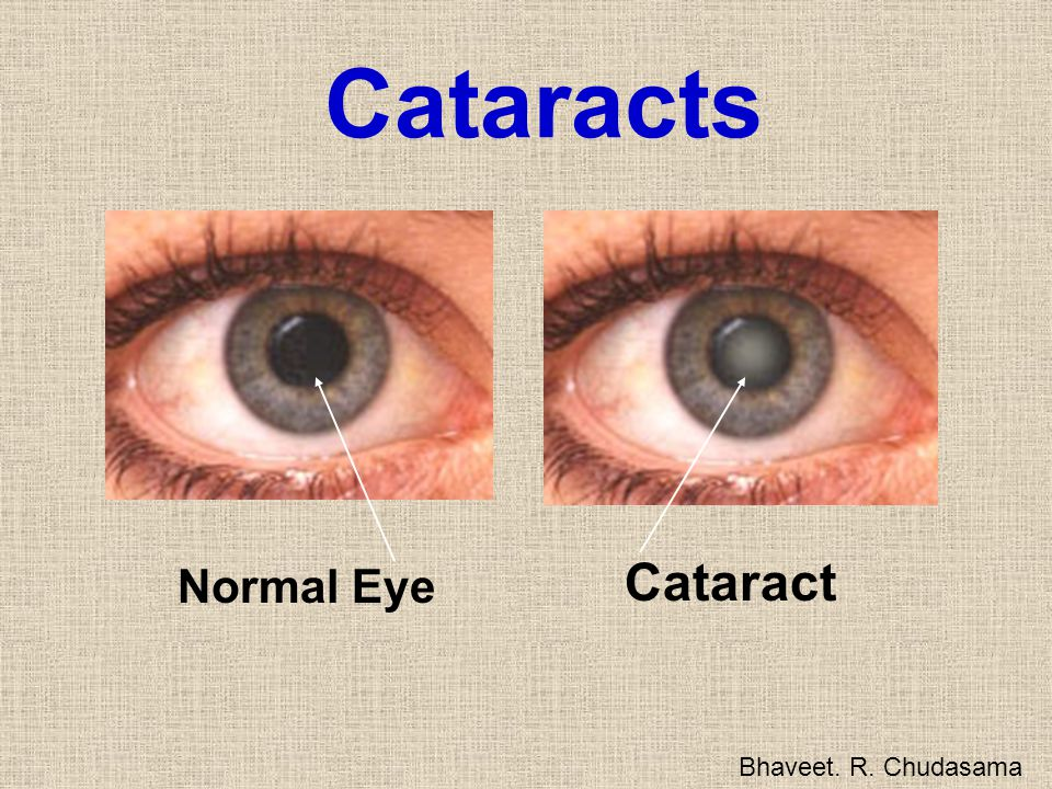 Cataracts Cataract Normal Eye Bhaveet. R. Chudasama