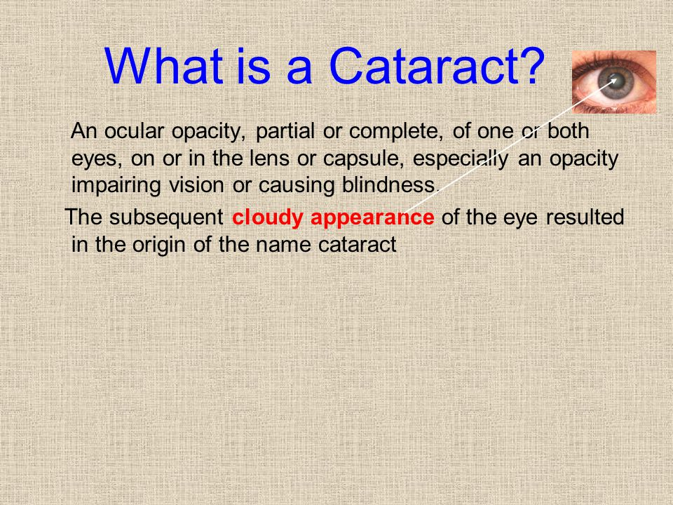 What is a Cataract
