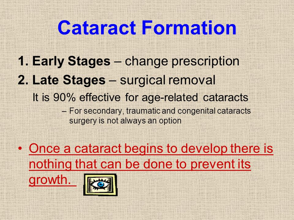 Cataract Formation 1. Early Stages – change prescription