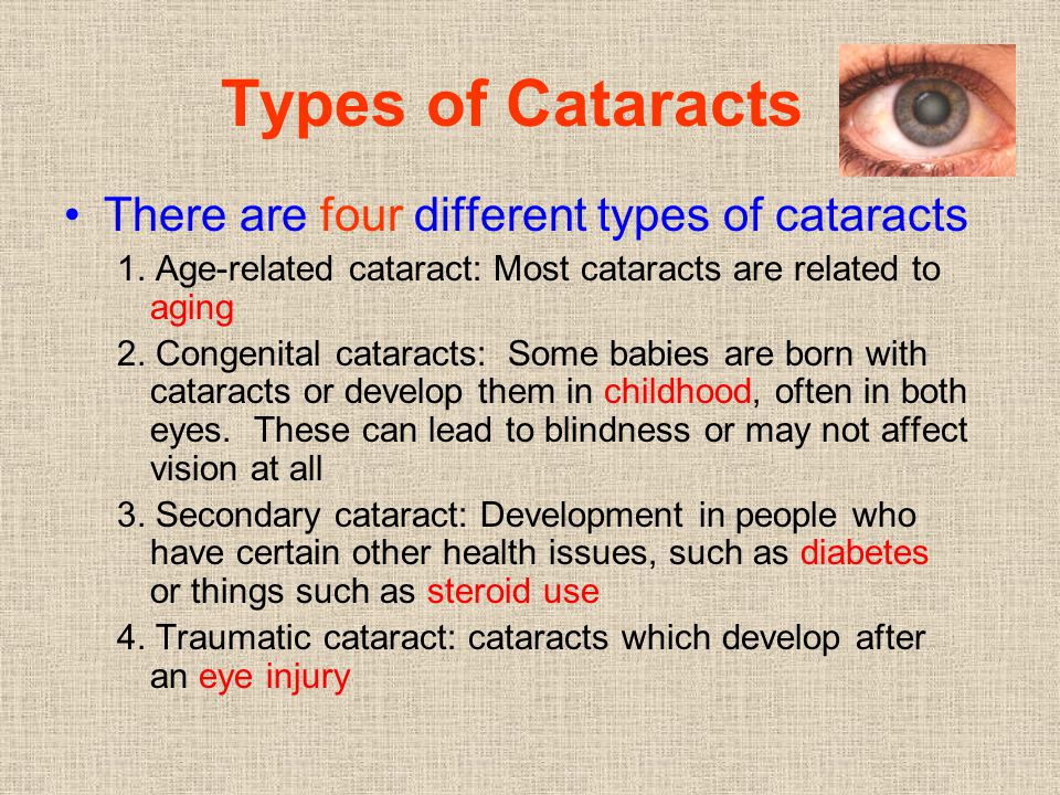 Types of Cataracts There are four different types of cataracts