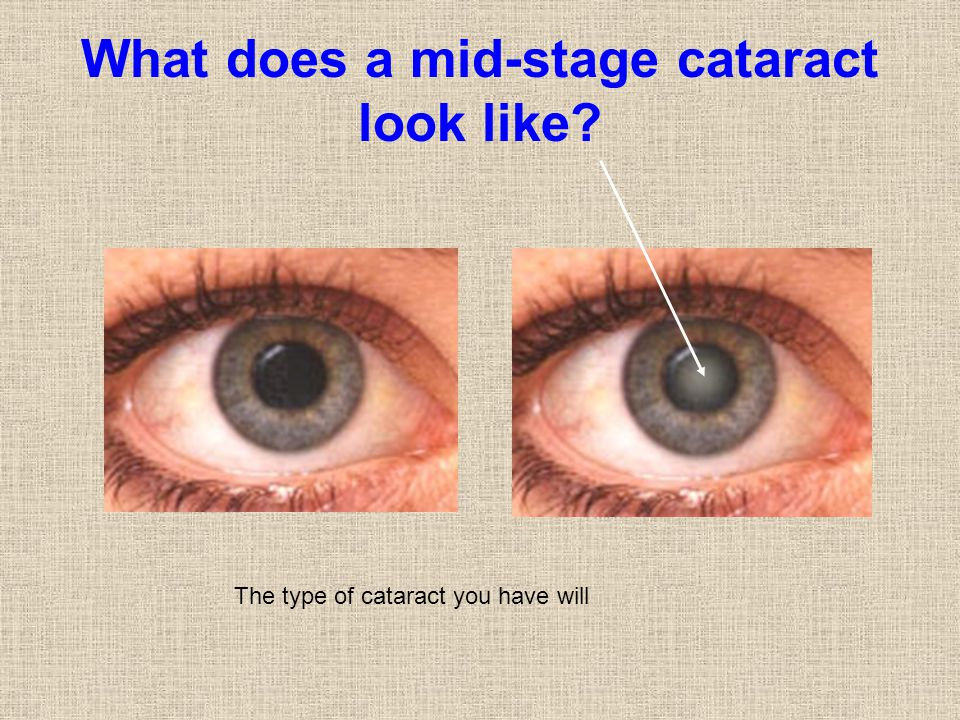 What does a mid-stage cataract look like