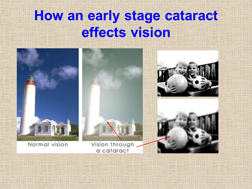 How an early stage cataract effects vision