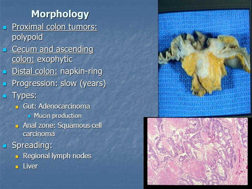 Morphology Proximal colon tumors: polypoid