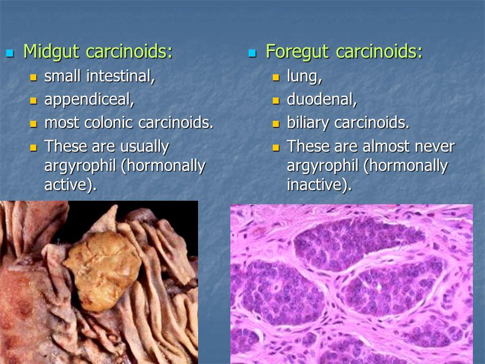 Midgut carcinoids: Foregut carcinoids: small intestinal, appendiceal,