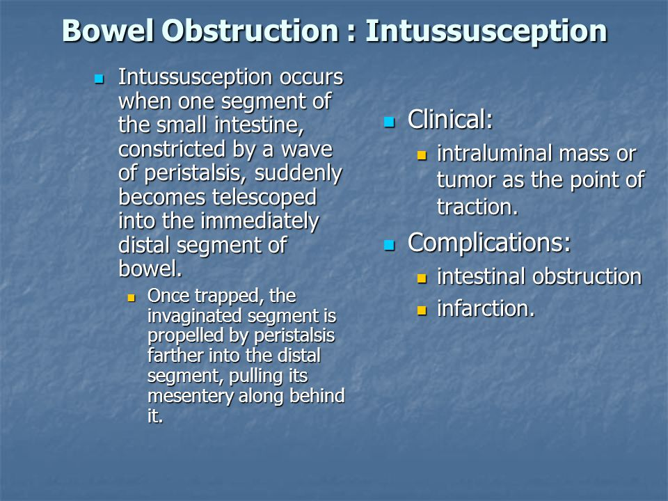 Bowel Obstruction : Intussusception