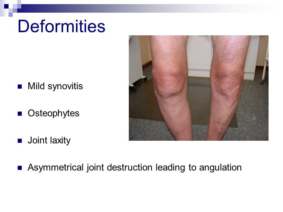 Deformities Mild synovitis Osteophytes Joint laxity