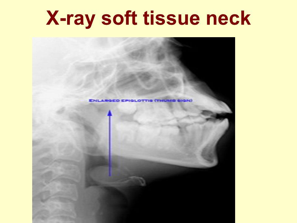 X-ray soft tissue neck