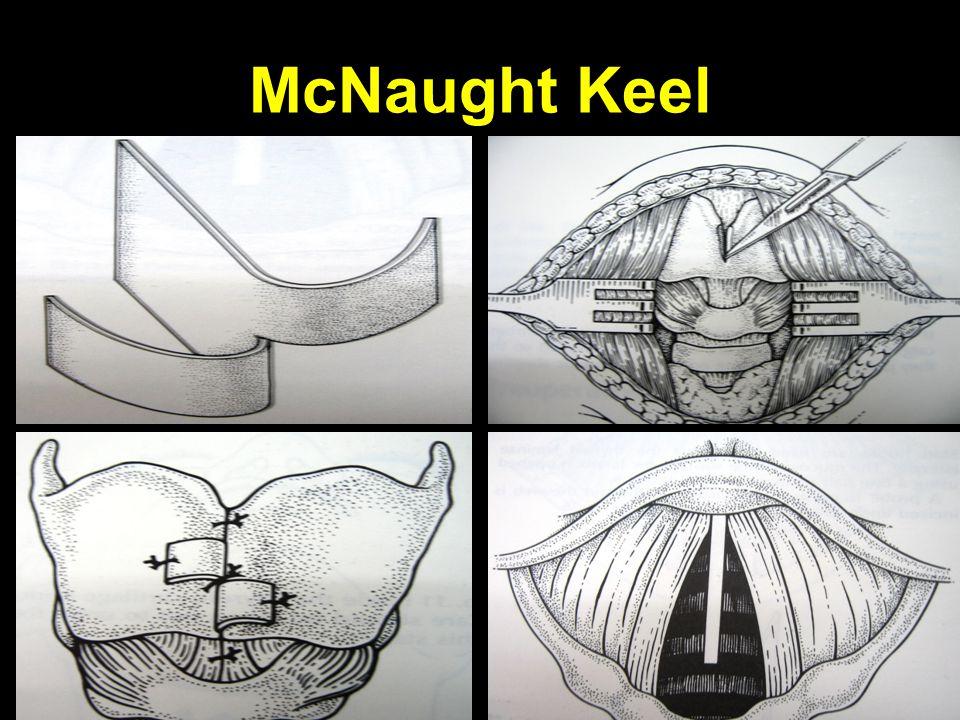 McNaught Keel