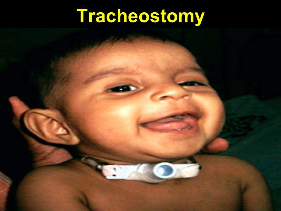 Tracheostomy
