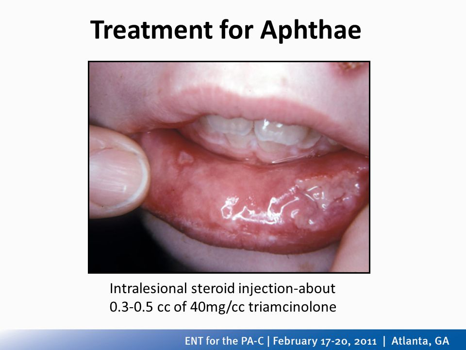 Treatment for Aphthae Intralesional steroid injection-about cc of 40mg/cc triamcinolone