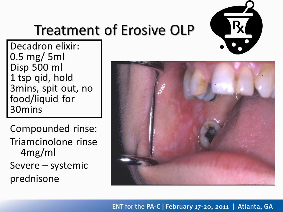 Treatment of Erosive OLP