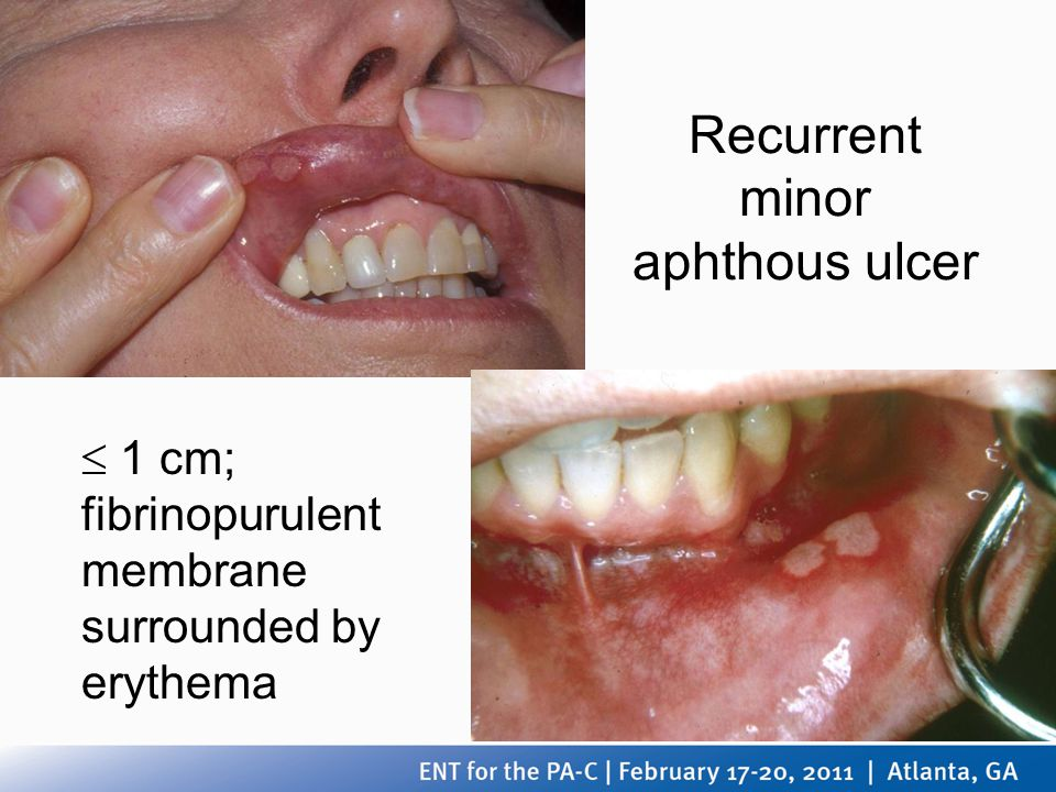 Recurrent minor aphthous ulcer
