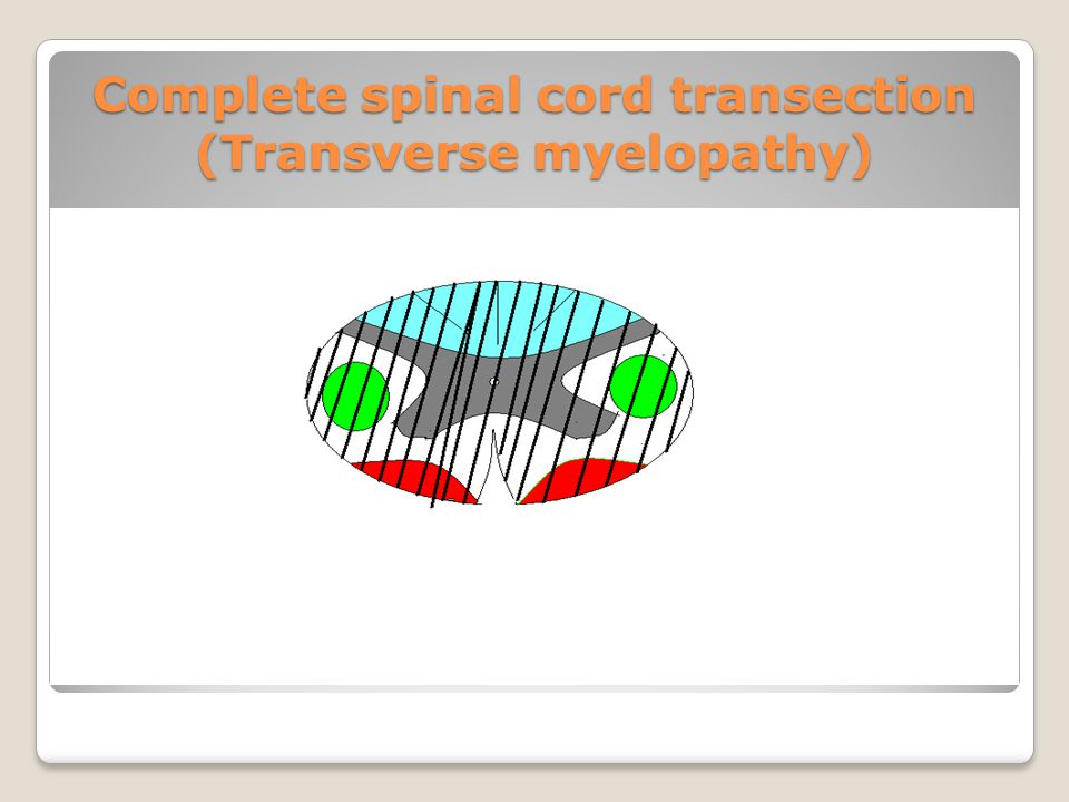 Complete spinal cord transection (Transverse myelopathy)