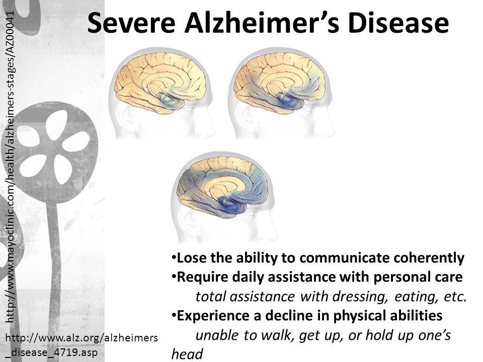 Severe Alzheimer's Disease