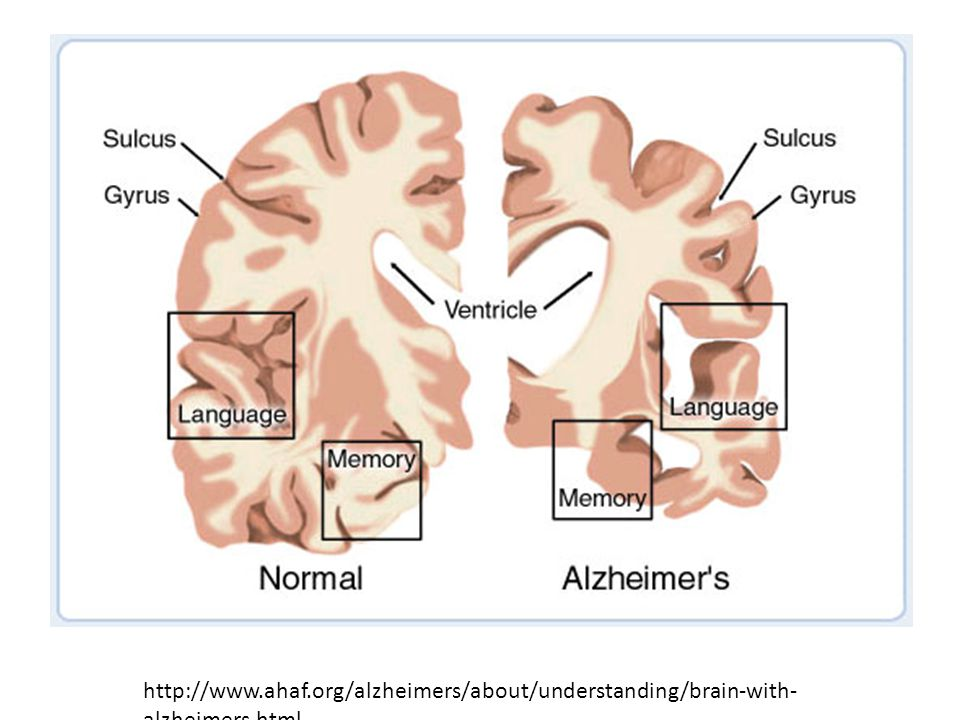 These images represent a cross-section of the brain as seen from the front. The cross-section on the left represents a normal brain and the one on the right represents a brain with Alzheimer s disease.In Alzheimer s disease, there is an overall shrinkage of brain tissue. The grooves or furrows in the brain, called sulci (plural of sulcus), are noticeably widened and there is shrinkage of the gyri (plural of gyrus), the well-developed folds of the brain s outer layer. In addition, the ventricles, or chambers within the brain that contain cerebrospinal fluid, are noticeably enlarged. In the early stages of Alzheimer s disease, short-term memory begins to fade (see box labeled 'memory ) when the cells in the hippocampus, which is part of the limbic system, degenerate. The ability to perform routine tasks also declines. As Alzheimer s disease spreads through the cerebral cortex (the outer layer of the brain), judgment declines, emotional outbursts may occur and language is impaired. As the disease progresses, more nerve cells die, leading to changes in behavior, such as wandering and agitation. In the final stages of the disease, people may lose the ability to recognize faces and communicate; they normally cannot control bodily functions and require constant care. On average, the disease lasts for 8 to 10 years, but individuals with Alzheimer's can live for up to 20 years.