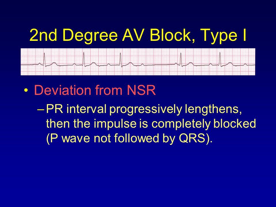 2nd Degree AV Block, Type I