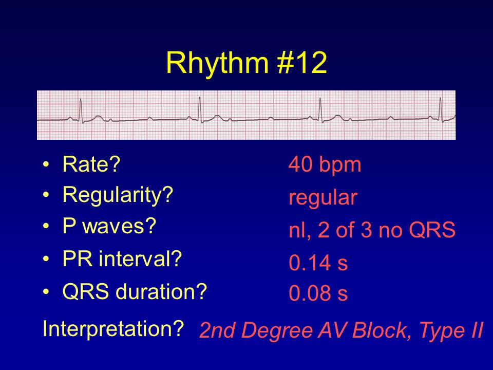 Rhythm #12 Rate 40 bpm Regularity regular P waves nl, 2 of 3 no QRS