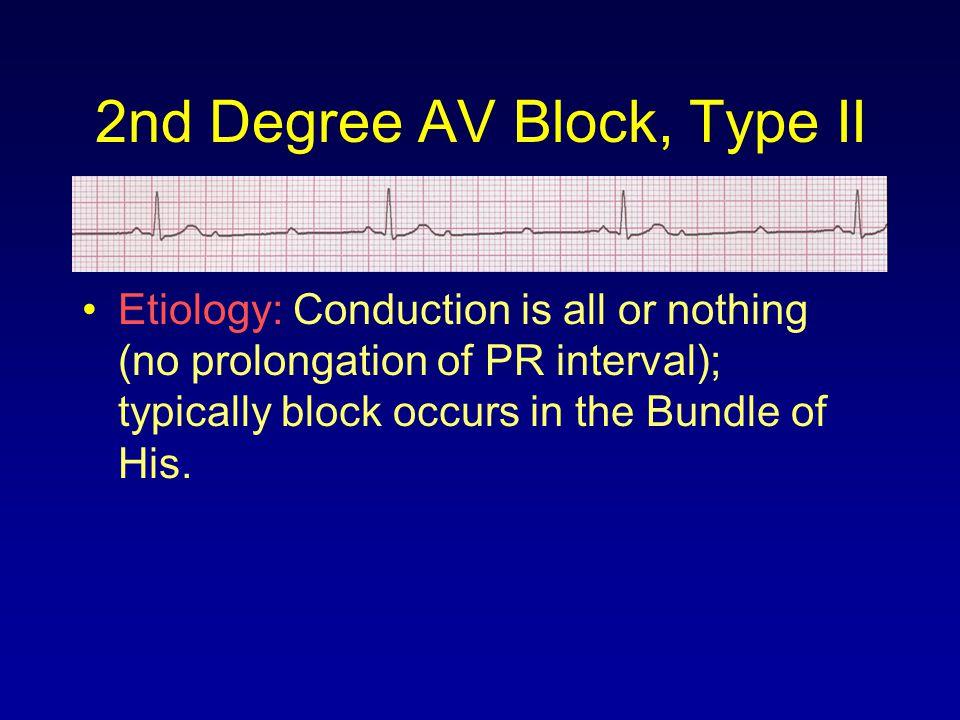 2nd Degree AV Block, Type II