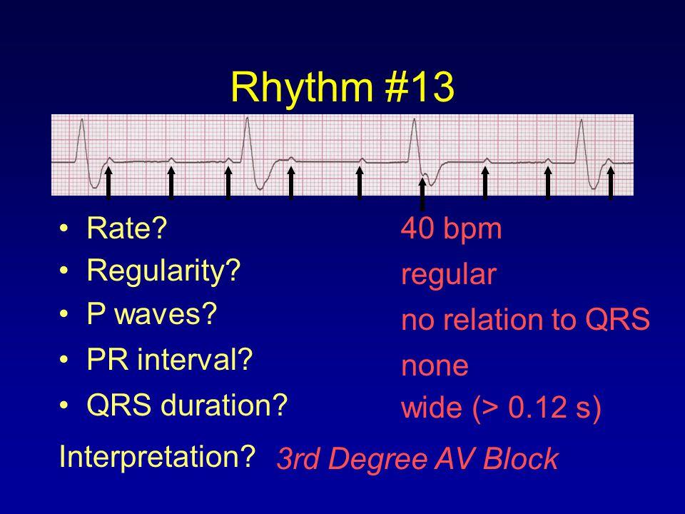 Rhythm #13 Rate 40 bpm Regularity regular P waves