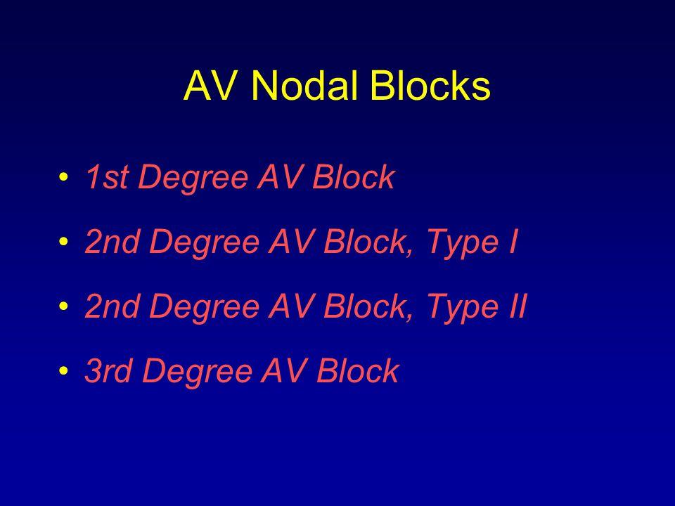AV Nodal Blocks 1st Degree AV Block 2nd Degree AV Block, Type I