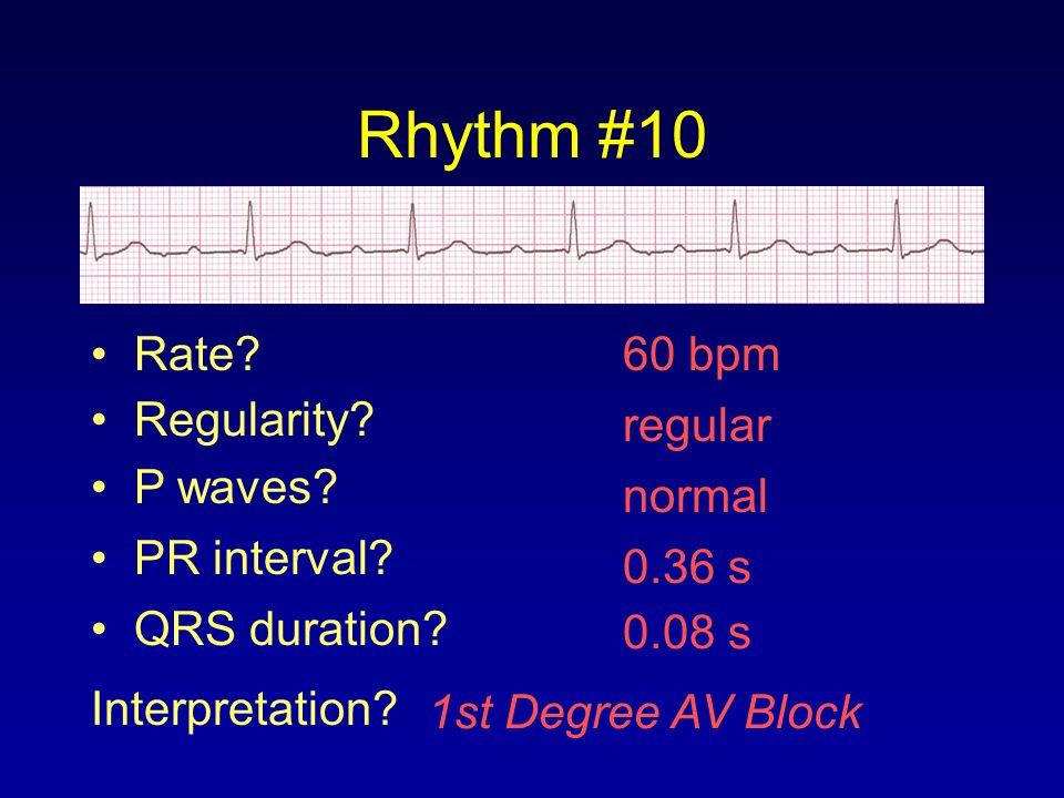 Rhythm #10 Rate 60 bpm Regularity regular P waves normal