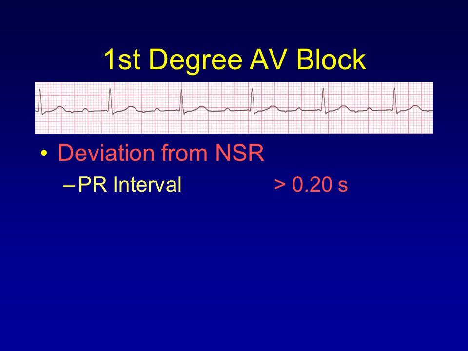 1st Degree AV Block Deviation from NSR PR Interval > 0.20 s