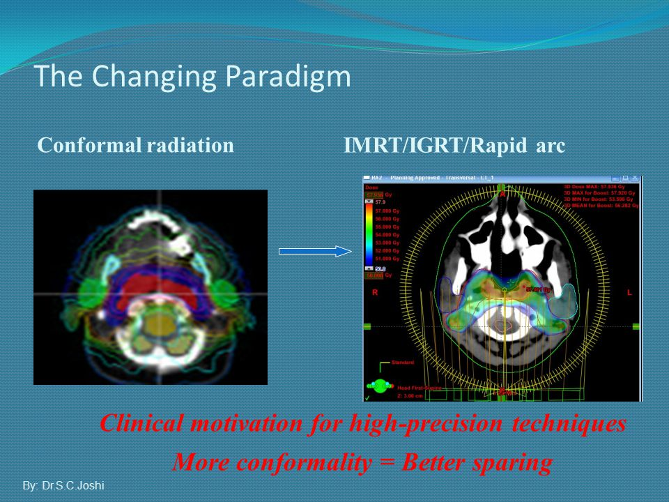 The Changing Paradigm Conformal radiation. IMRT/IGRT/Rapid arc. Clinical motivation for high-precision techniques.