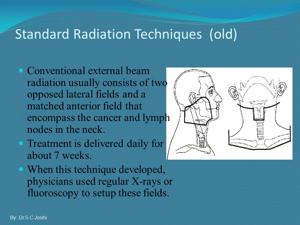 Standard Radiation Techniques (old)