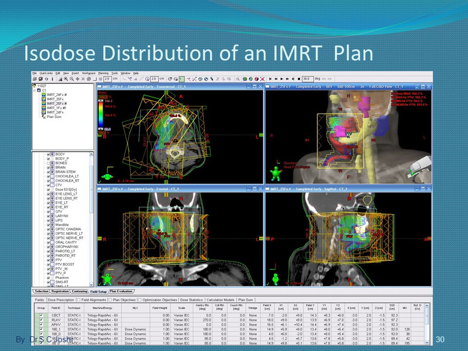 Isodose Distribution of an IMRT Plan