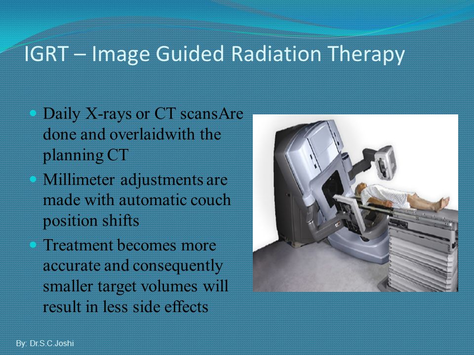 IGRT – Image Guided Radiation Therapy