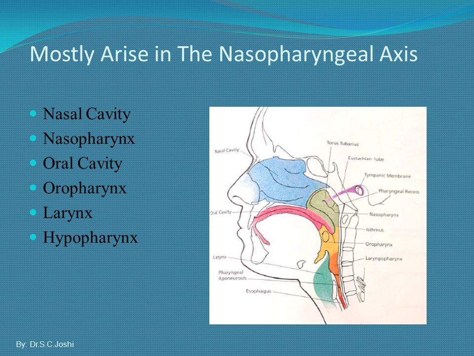 Mostly Arise in The Nasopharyngeal Axis
