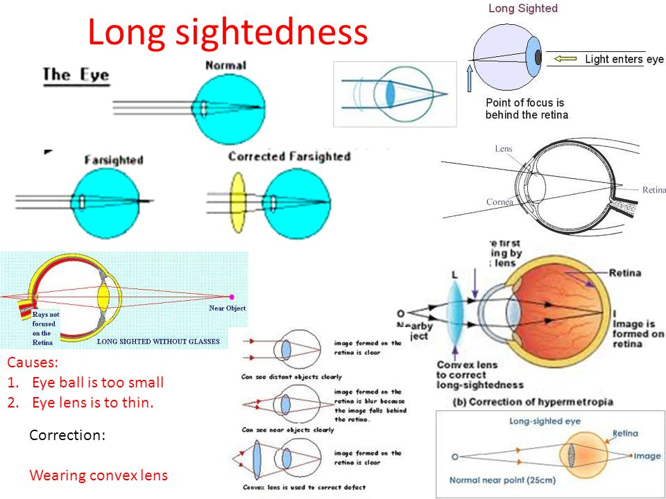 Long sightedness Causes: Eye ball is too small Eye lens is to thin.