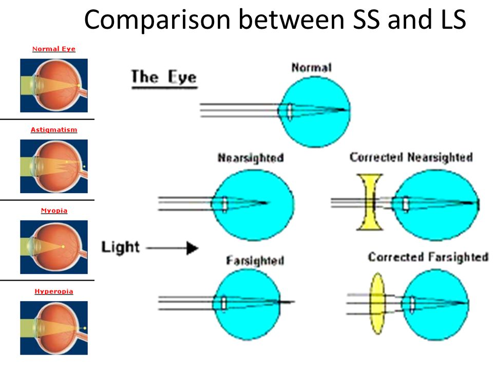 Comparison between SS and LS