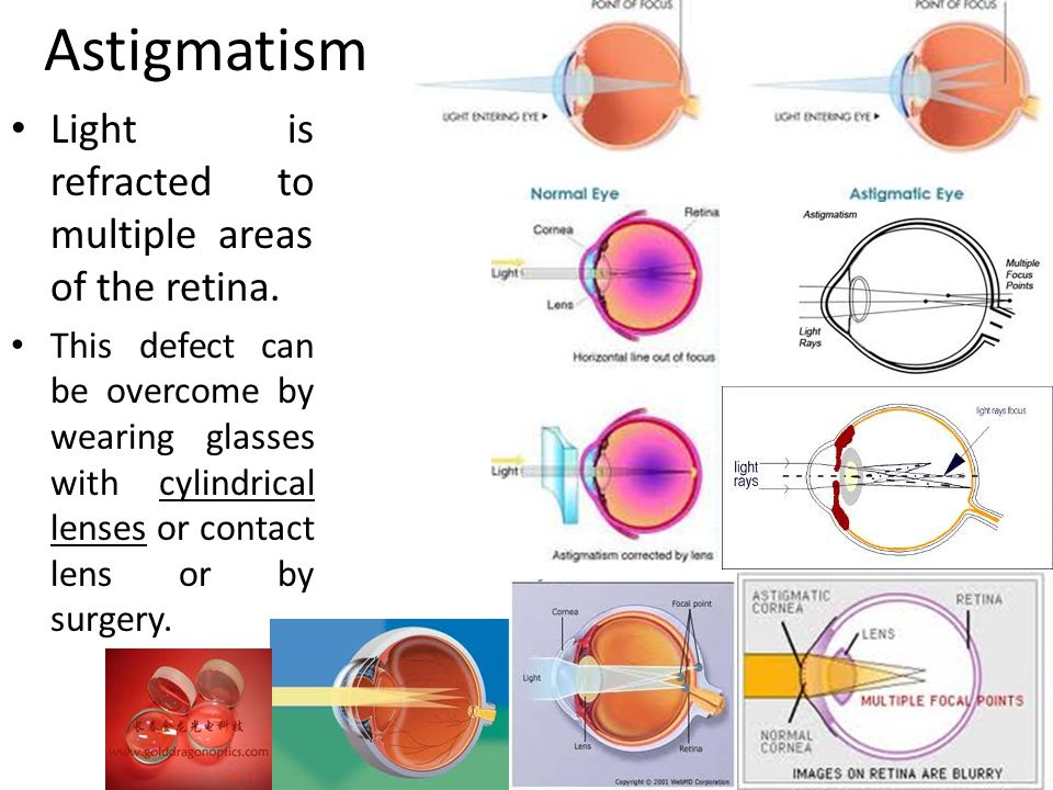 Astigmatism Light is refracted to multiple areas of the retina.