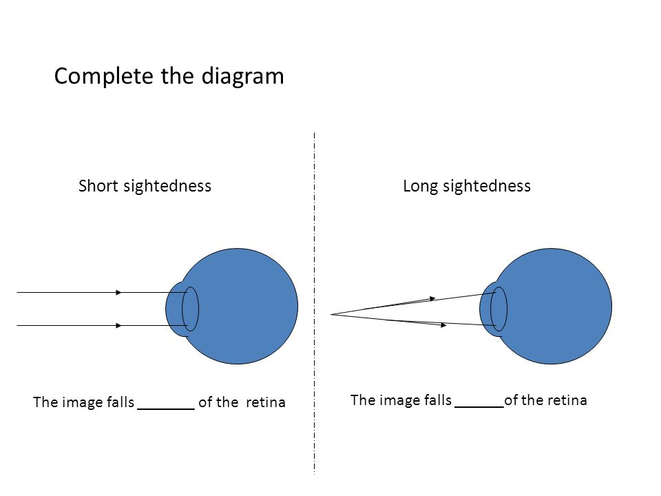 Complete the diagram Short sightedness Long sightedness