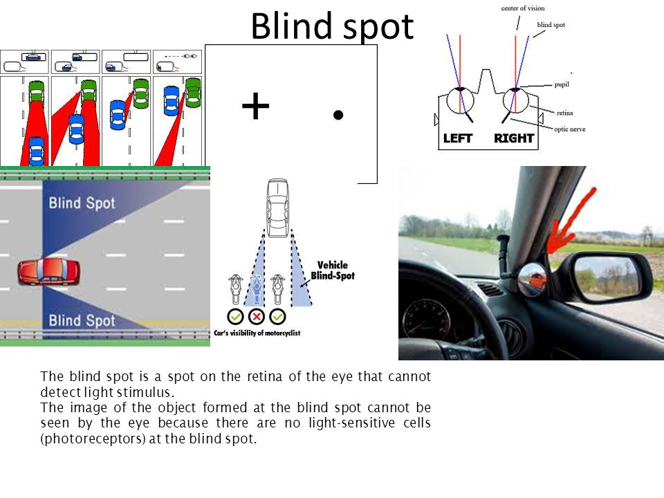 Blind spot The blind spot is a spot on the retina of the eye that cannot detect light stimulus.