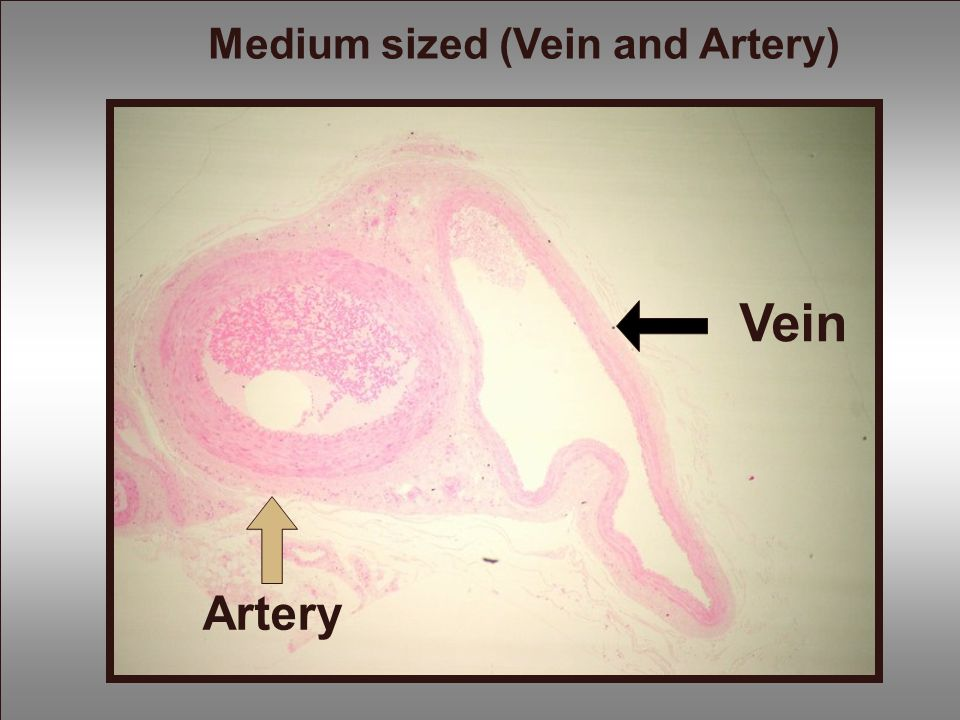 Medium sized (Vein and Artery)