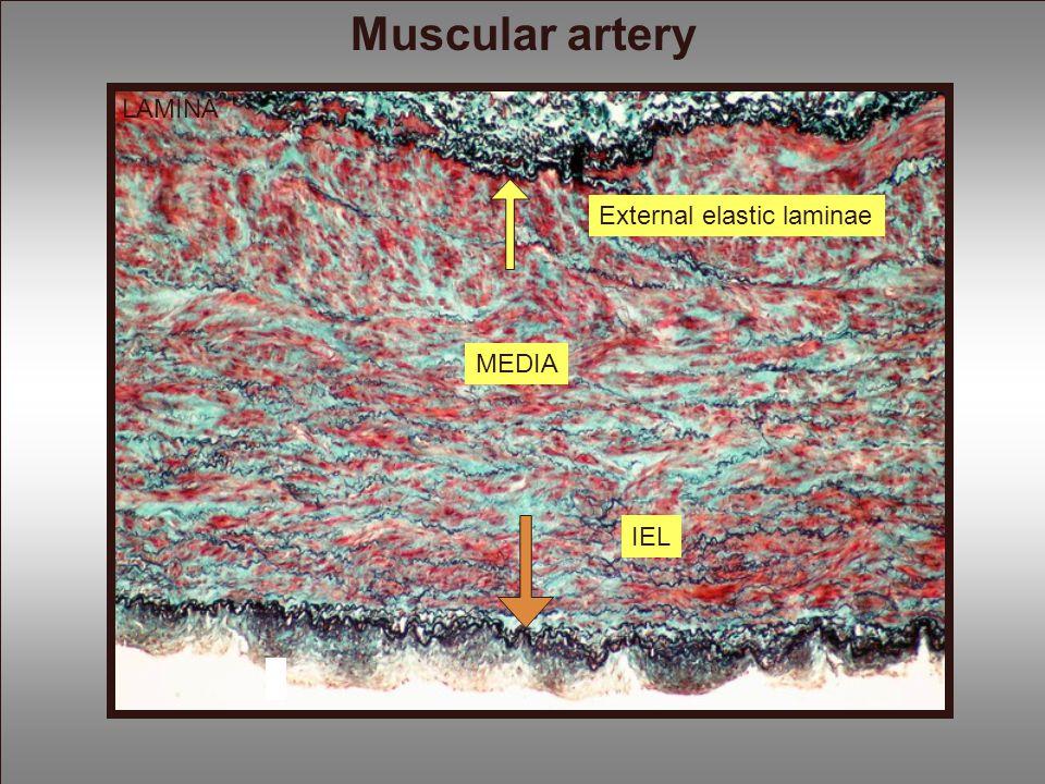 Muscular artery LAMINA External elastic laminae MEDIA IEL