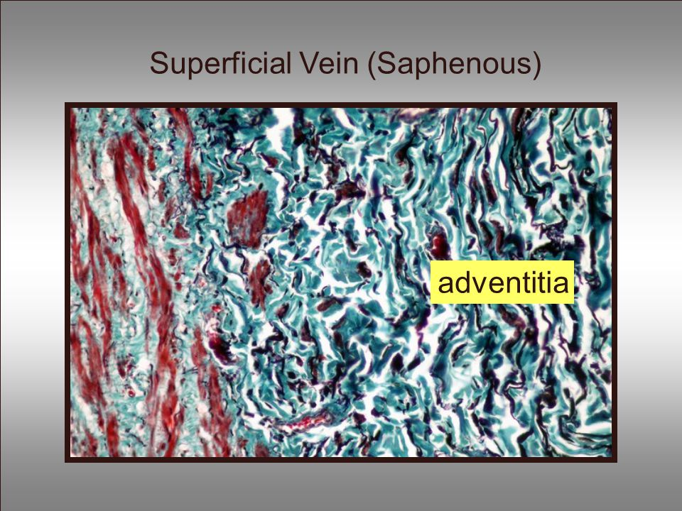 Superficial Vein (Saphenous)