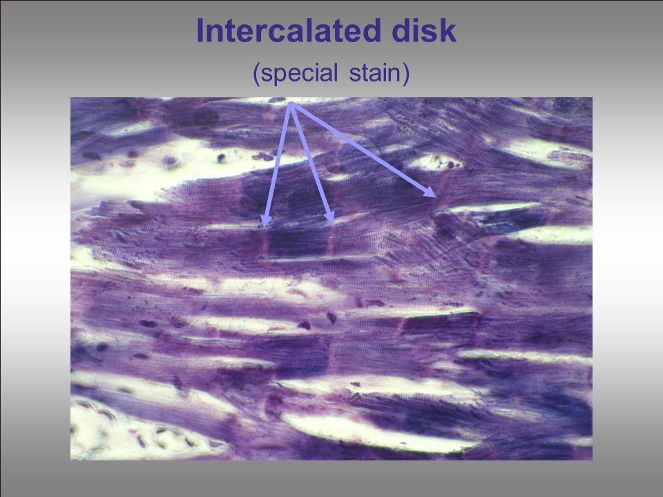 Intercalated disk (special stain)