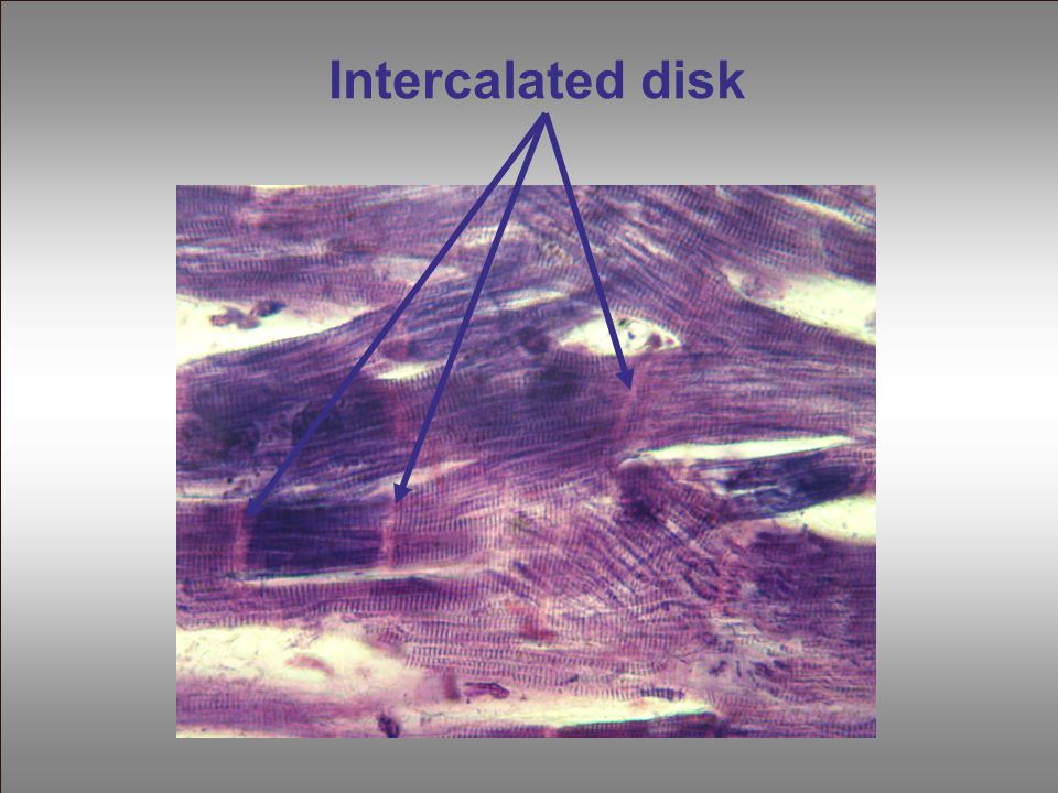 Intercalated disk