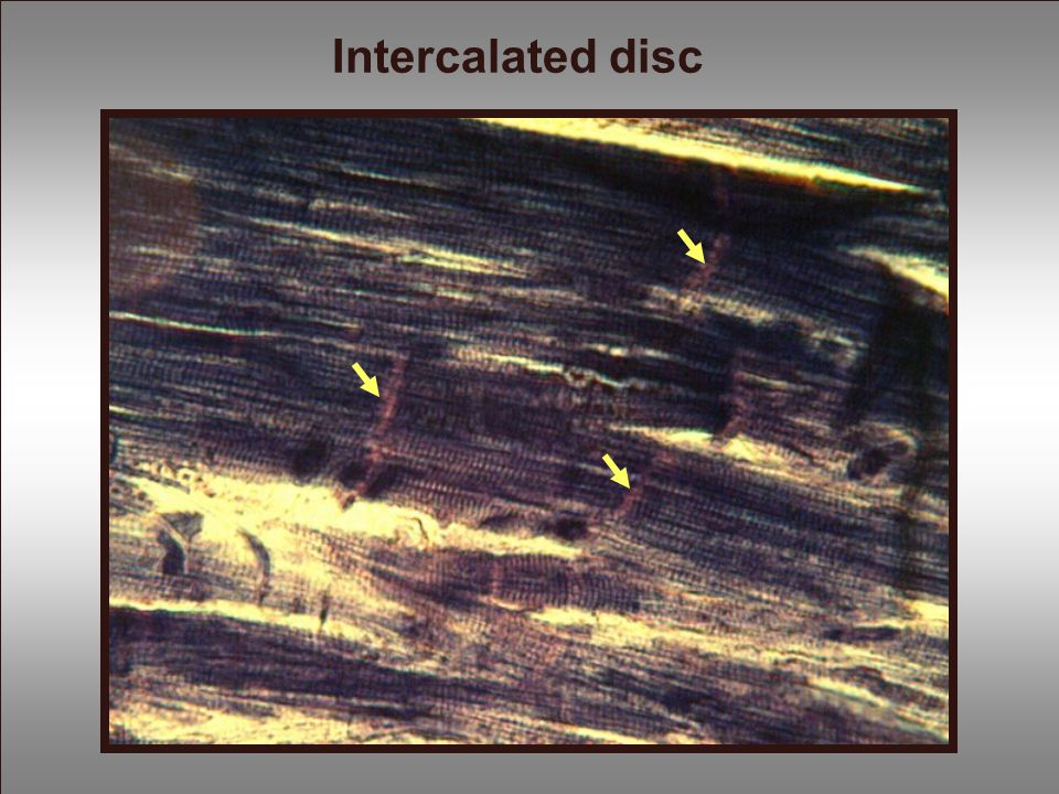 Intercalated disc