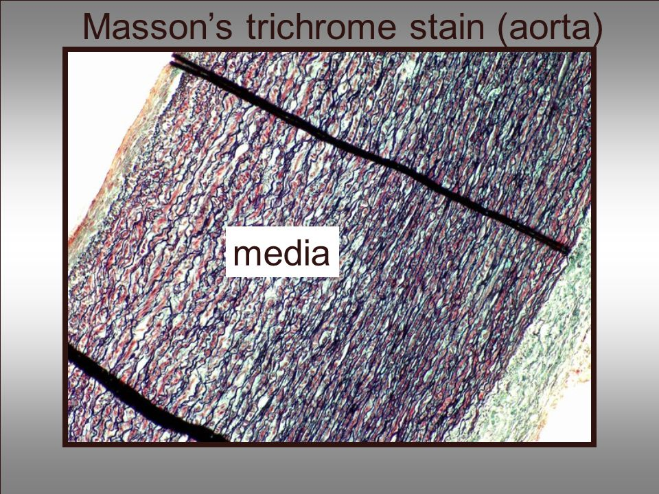 Masson's trichrome stain (aorta)