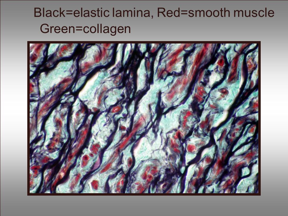 Black=elastic lamina, Red=smooth muscle