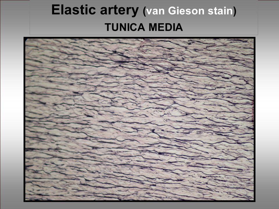 Elastic artery (van Gieson stain) TUNICA MEDIA