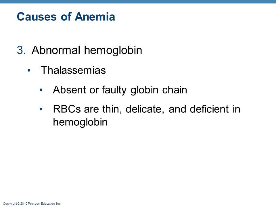 Causes of Anemia Abnormal hemoglobin Thalassemias