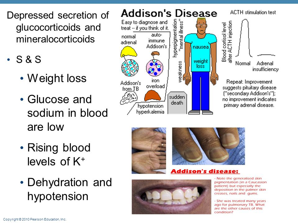 Glucose and sodium in blood are low