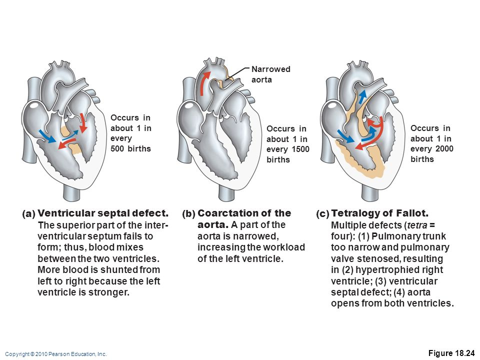 Ventricular septal defect. The superior part of the inter-