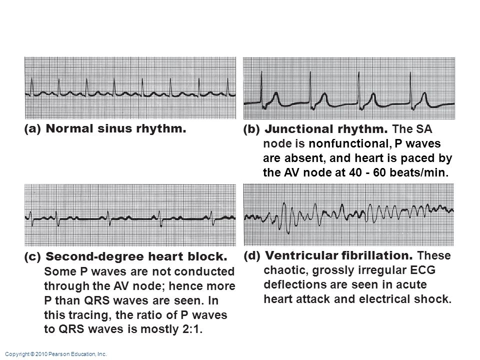 (a) Normal sinus rhythm.